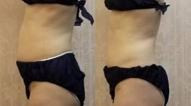 正しくポイントを押さえれば、痩せるのは簡単です!